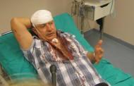 PREDAO SE: Kukića je pretukao invalid HVO-a zbog izjava o Kordiću