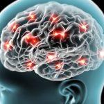 Žene u BiH češće umiru od moždanog udara nego od karcinoma