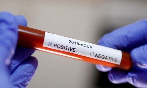 Testirano 26 osoba, jedna osoba iz Posušja pozitivna na COVID-19